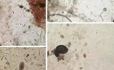 魟鱼体内寄生虫长啥样?显微镜下的魟鱼体内寄生虫!